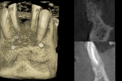 gingival-gum-soft-tissue-Mask-of-bone-loss-CBCT-kazemi-oral-surgery-4