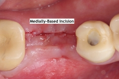 4.-Missing-30-with-thin-buccal-soft-tissue-deficiency-lingual-incision-kazemi-oral-surgery