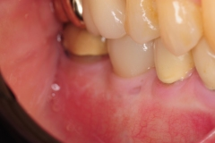 9.-Missing-30-with-thin-buccal-soft-tissue-deficiency-final-restoration-buccal-kazemi-oral-surgery