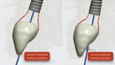 cement vs screw retained dental implant position.kazemi oral surgery 3