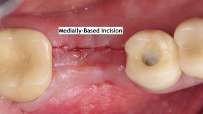 4. Missing #30 with thin buccal soft tissue deficiency lingual incision kazemi oral surgery